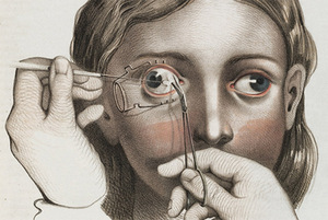 Joseph Pancoast. Strabismus correction surgery, 1846. Wellcome Library, London, United Kingdom